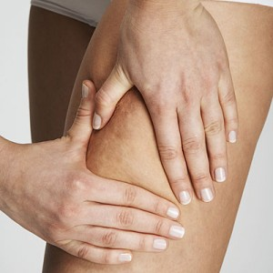 fight-cellulite-naturally